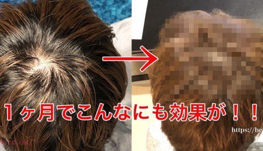 【写真あり】チャップアップを1ヶ月使った結果!頭頂部の薄毛に驚くべき変化が!?