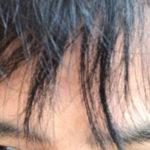 AGA治療は体毛が濃くなる。鼻毛もヒゲもよく伸びるから効いてきた証拠