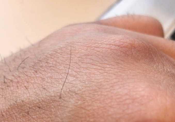 手の甲にこんなに長い毛が…
