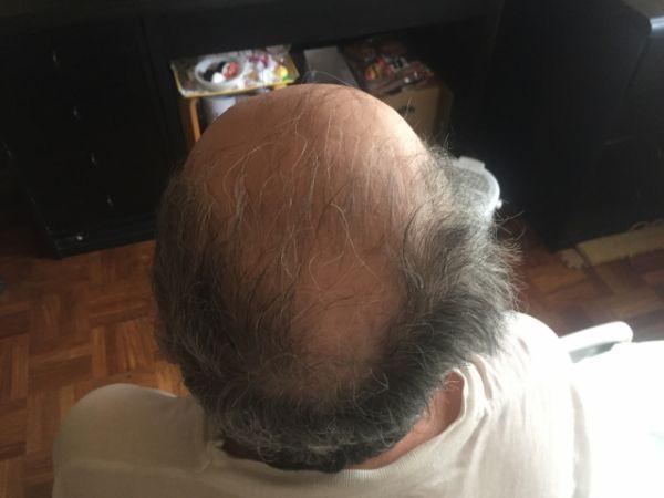 父親のハゲ頭