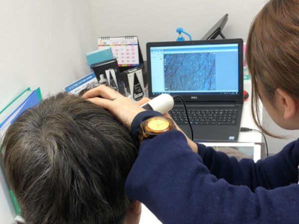 マイクロスコープで頭皮の状態をチェックされている男性
