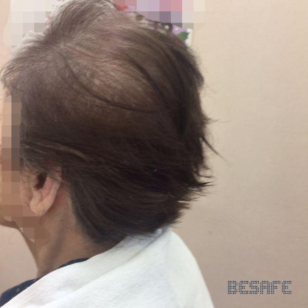 散髪後の女性の側頭部