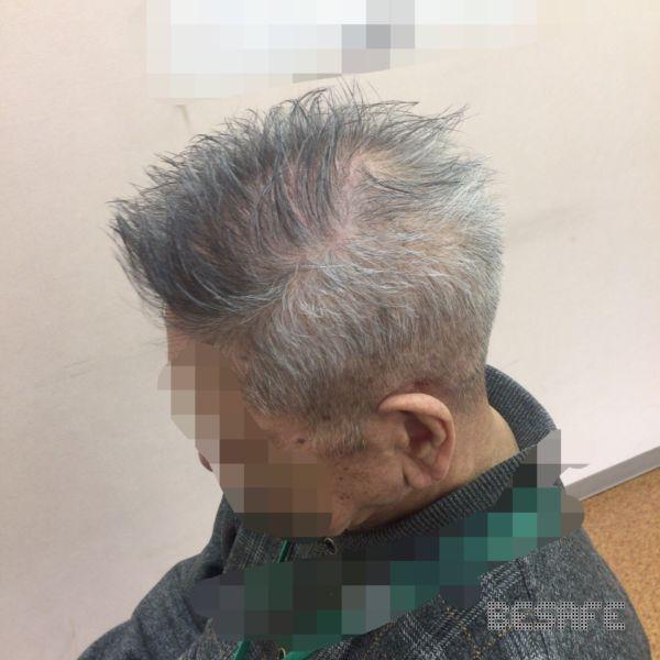 髪をカットした男性の側頭部