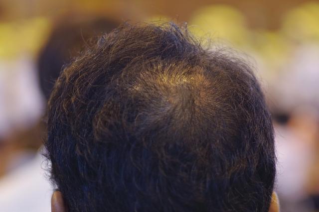 増毛スプレーのCAX(カックス)は最悪!効果ない!薄毛なんて隠れない!という人が読むべき記事